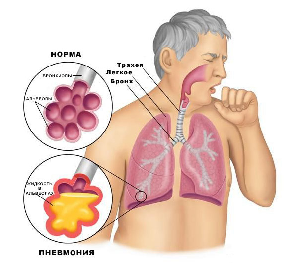 respiratory disease and pneumonia bacteria Pneumonia is a common lung infection caused by bacteria can cause pneumonia pneumonia is not a single disease severe acute respiratory syndrome.